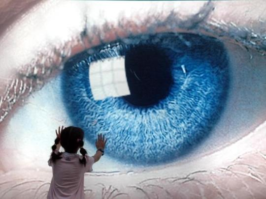 descoperire-inedita-in-medicina-ochii-caprui-pot-fi-transformati-definitiv-in-ochi-albastri-video-2306525